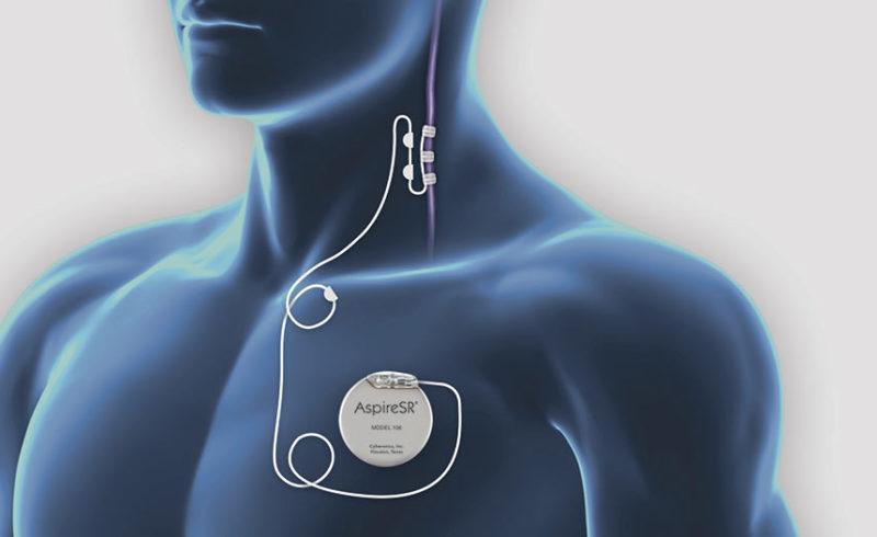 cirugía de epilepsia