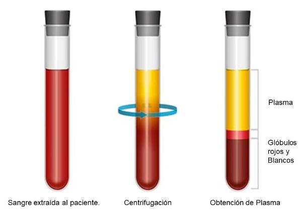 Factores de crecimiento - Plasma rico en plaquetas